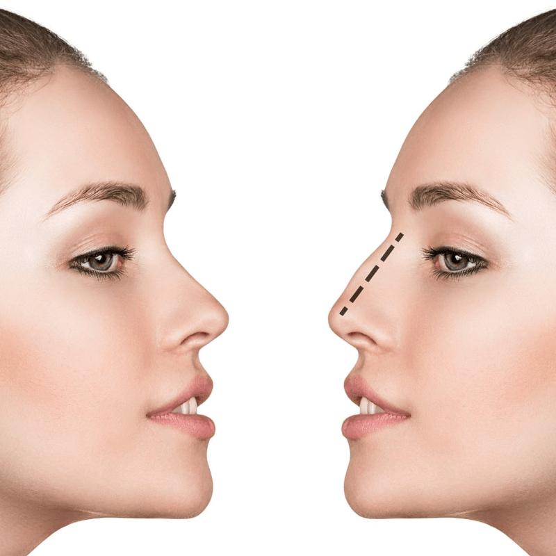 Rinoplastie - chirurgie estetica nas