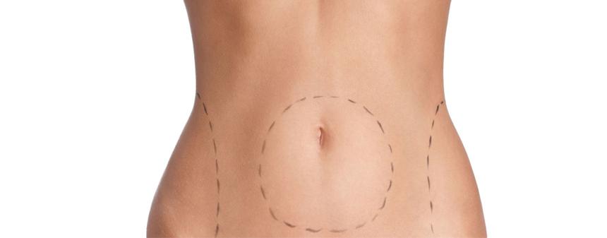 Chirurgie estetica - Abdominoplastia